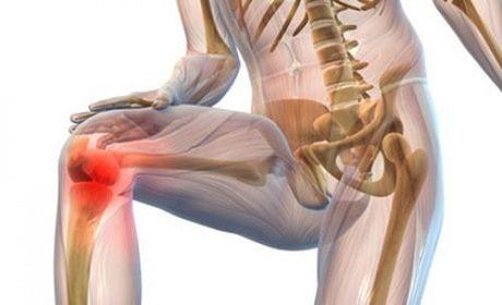 Симптомы и лечение суставного ревматизма у взрослых