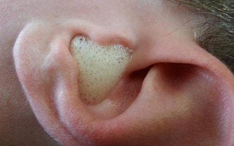 Как убрать серную пробку из уха