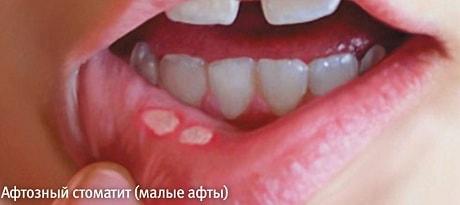 Почему появляются язвочки на губе