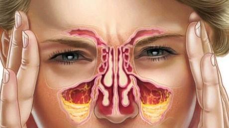 Симптомы, лечение и профилактика синусита. Как лечить синусит 19