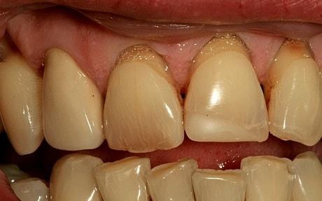 Что делать с налетом на зубах