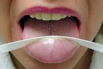Как избавиться от белого налета на языке у взрослых