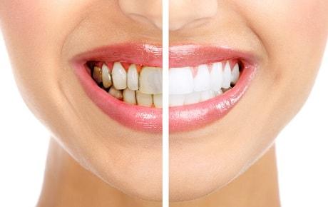 Накопления на зубах как лечить