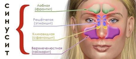 Средства лечения двустороннего синусита