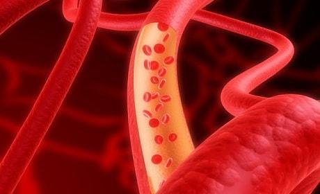 Как лечить анемию у мужчин и женщин