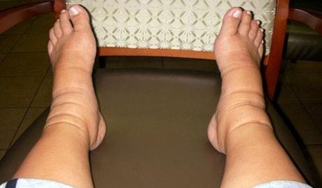 Болят и отекают ноги у мужчины
