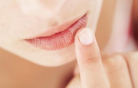 Чем лечить трещины на губах