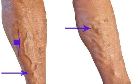 Причины атеросклероза сосудов ног