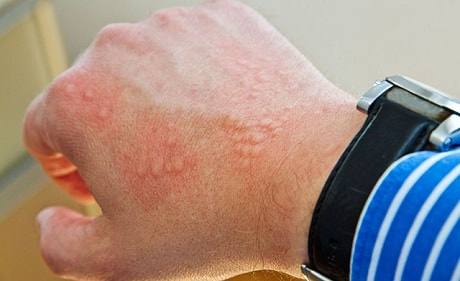 Аллергические пятна на коже рук