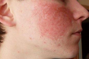 Лечение кожной аллергии