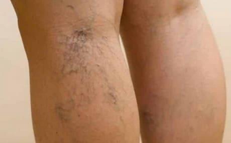 Симптомы тромбофлебита вен на ногах