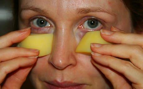 Как лечить мешки под глазами картофелем