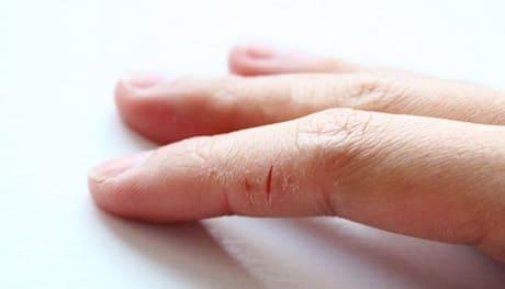 Чем лечить трещины на пальцах