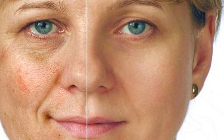 Как убрать пигментацию на лице
