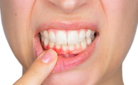 Лечение гингивита десен у взрослых