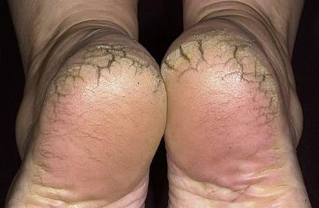 Очень сухая кожа на стопах