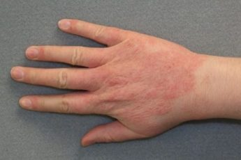 Чем лечить экзему на руках