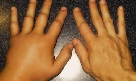 Симптомы и лечение артрита суставов пальцев рук медикаментозными и народными средствами