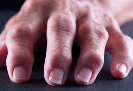 Первые симптомы артрита пальцев