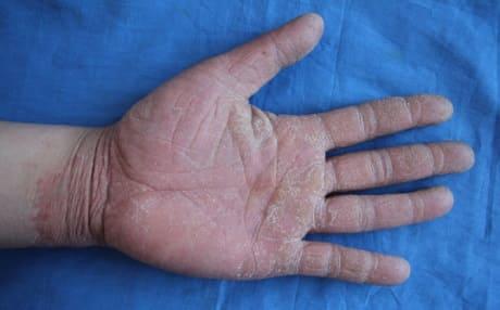 Авитаминоз на руках у взрослых