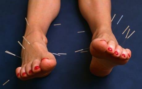 Иглотерапия на ноги