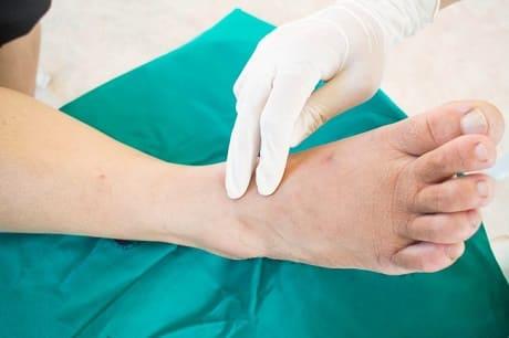 Почему немеет большой палец на ноге