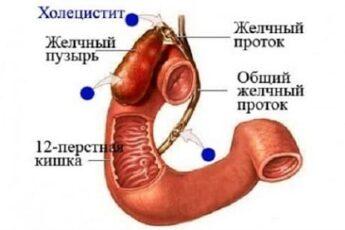Хронический холецистит симптомы и лечение
