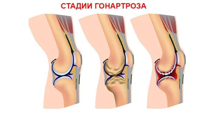Стадии гонартроза коленного сустава