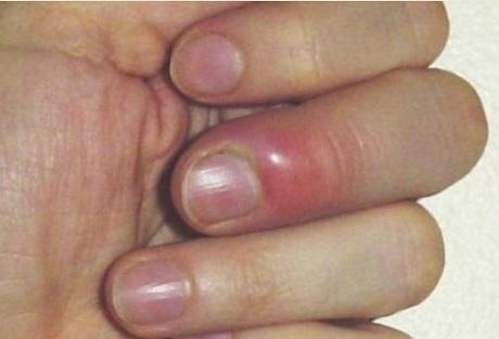 Чем лечить нарыв на пальце