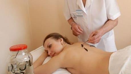 Польза гирудотерапии