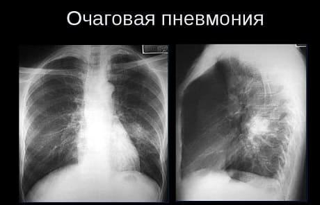 Симптомы очаговой пневмонии