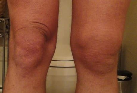 Как лечить коленный бурсит
