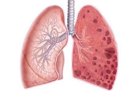 Симптомы и лечение эмфиземы легких
