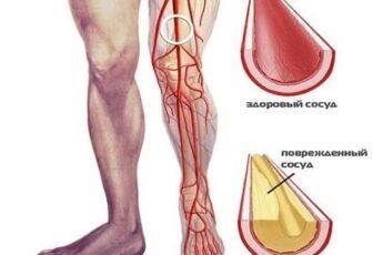 Улучшение кровообращения в ногах