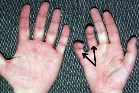 Онемение и покалывание пальцев рук